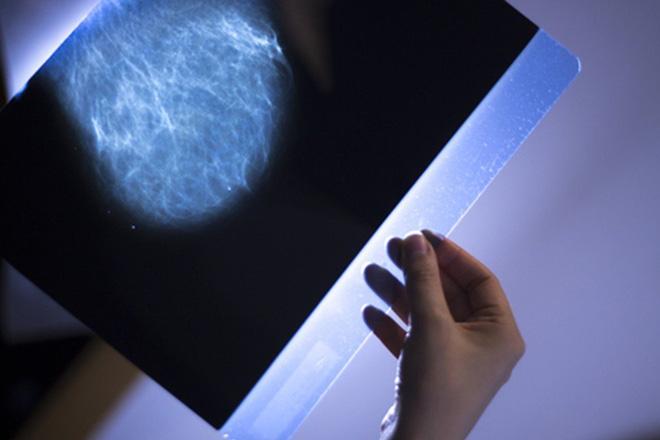 Vì sao trí tuệ nhân tạo của Google có thể chẩn đoán ung thư vú chính xác hơn nhiều so với các bác sĩ giỏi nhất? - Ảnh 4.