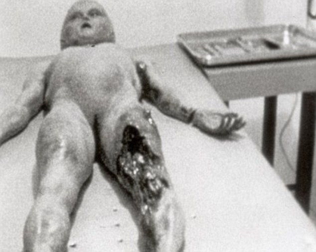 Roswell, New Mexico sprang to international fame on July 8, 1947, when the local newspaper reported the capture of a flying saucer by government officials in the town. The original Roswell hoax alien autopsy pictures, including this one, were unveiled in 1995