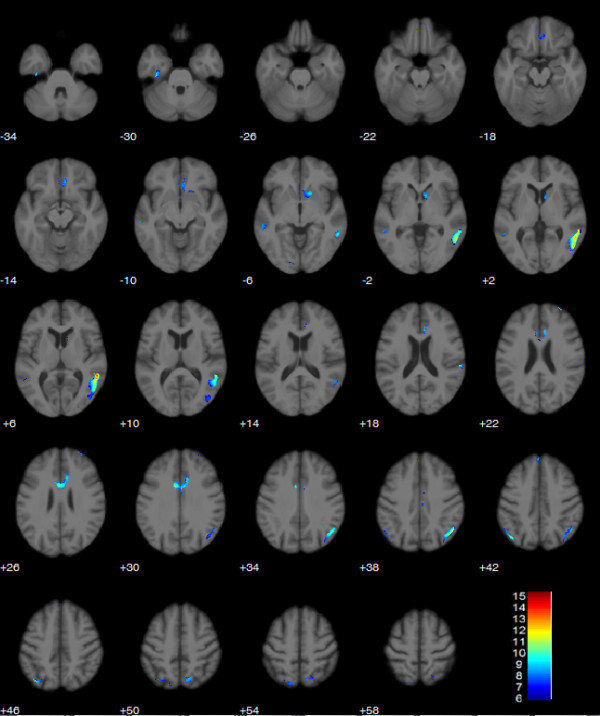 Biểu đồ chụp cắt lớp não của người chạy marathon cực độ.