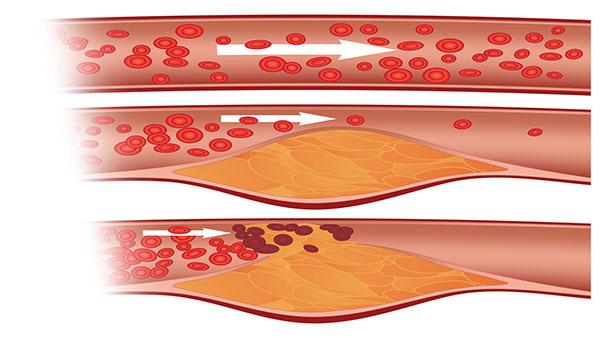Cholesterol được cho là nguyên nhân gây ra các bệnh tắc nghẽn mạch máu và các căn bệnh tim mạch.
