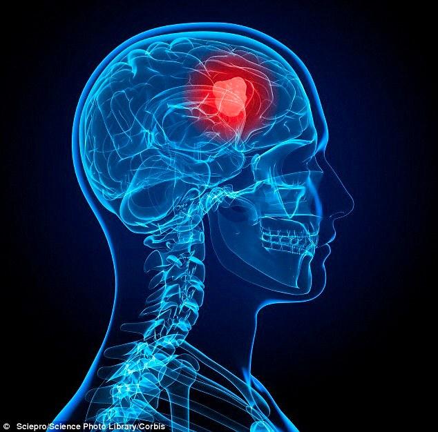 Hợp chất có thể mở ra cơ hội cho bệnh nhân u não GBM, một trong những loại ung thư khó điều trị nhất