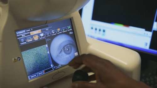 Máy quét để chuẩn đoán các bệnh về mắt.