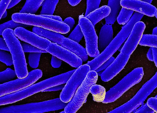 Phát hiện ra loại khuẩn kháng kháng sinh Collistin.