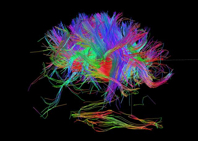 Hình ảnh cho thấy sự phức tạp của các kết nối thần kinh, việc tạo ra một ý thức tổng hợp mô phỏng con người là không đơn giản.