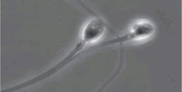 Công nghệ hoá đông tinh trùng hoàn toàn có thể vô hiệu hoá một loại protein trên đuôi của tế bào tinh trùng - làm chúng quá cứng để có thể bơi một cách hiệu quả.