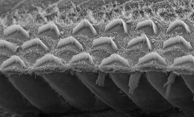 Cận cảnh các microvilli trong ốc tai của con người.