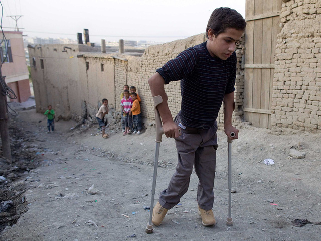 Cậu bé mắc bệnh bại liêt từ khi lên 2. Afghanistan là một trong số 2 nước vẫn còn chiến đấu với căn bệnh.