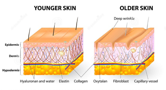 Giảm sản xuất collagen khiến da dễ khô, nứt