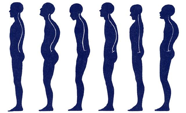 Ngồi nhiều khiến tư thế của bạn bị mất cân bằng vĩnh viễn