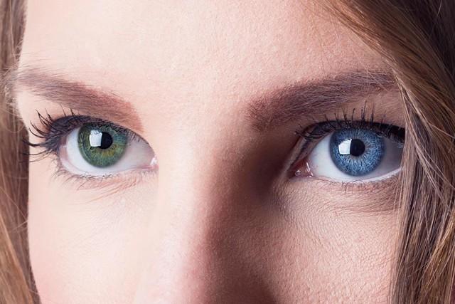 Chimera có thể tạo ra những cá thể có đôi mắt khác màu.
