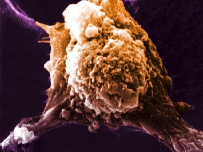Các bạch cầu sẽ có khả năng chống lại những tế bào ung thư trong cơ thể bệnh nhân.
