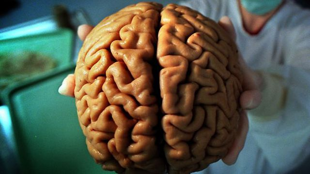 Khám phá mối liên hệ giữa kích thước bộ não và trí thông minh của con người