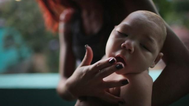 Zika không chỉ gây tổn tại sức khỏe mà còn để lại di tật đầu nhỏ ở trở em