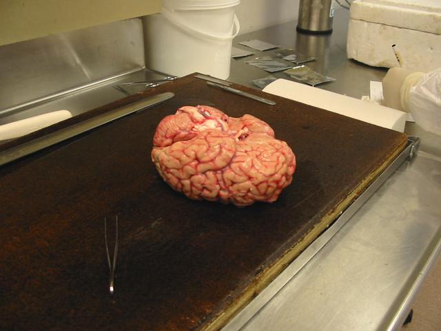Một bộ não được đặt ngược, đang chờ giải phẫu. Bộ não con người nặng trung bình khoảng 1.400g, bộ não bình thường nặng khoảng 900 - 2.000g. Các bệnh như Alhzeimer và Huntington làm giảm đáng kể kích thước và trọng lượng não.