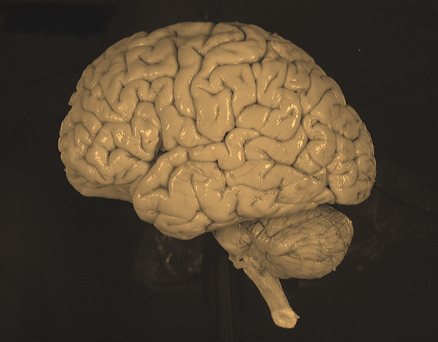 cố định formaldehyde nửa não trái