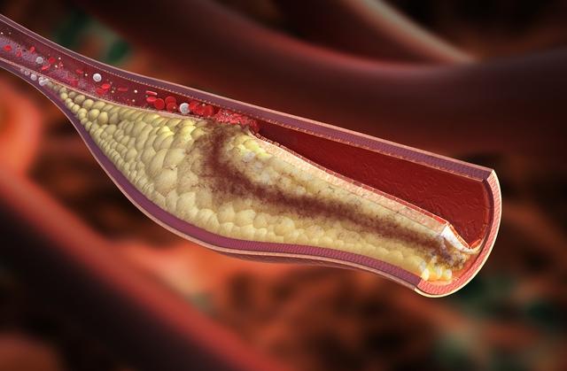 Cholesterol tích tụ làm hẹp động mạch gây bệnh tim và đột quỵ