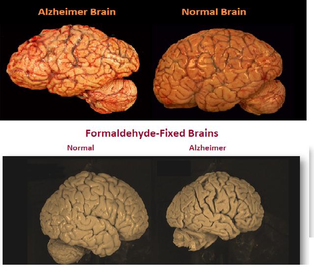 HÌnh ảnh bộ não bình thường và bộ não bị bệnh Alhzeimer cho thấy bộ não bị bệnh nhỏ hơn và bị teo lại.