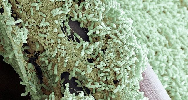 Liều kháng sinh có thể được giảm xuống hơn 90% trong một số trường hợp