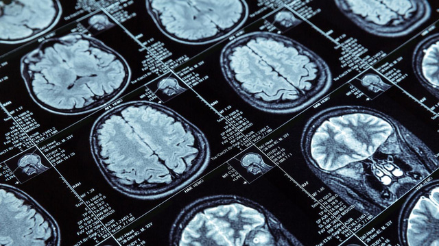 Trực giác tồn tại dưới dạng tín hiệu não khoảng thời gian 4/10 giây?