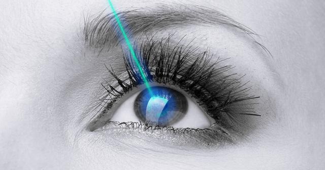 """Giải mã phẫu thuật cận thị """"không chạm"""" mắt mới ở Việt Nam: Kì diệu thì có nhưng lợi hại thế nào?"""