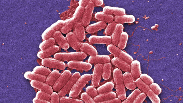 Vi khuẩn kháng colistin nghĩa là nó đã kháng tất cả các loại thuốc hiện có.