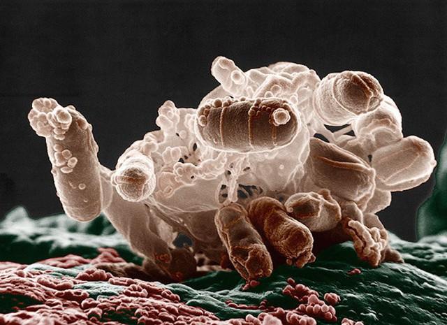 Vi khuẩn E. coli nhìn dưới kính hiển vi điện tử