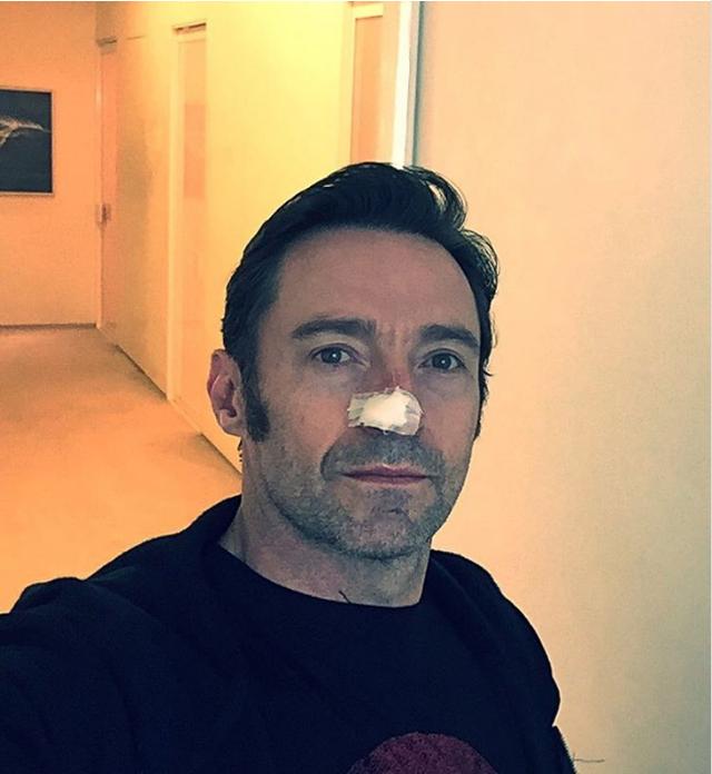 Hugh Jackman mới được loại bỏ khối ung thư da ngay trên mũi