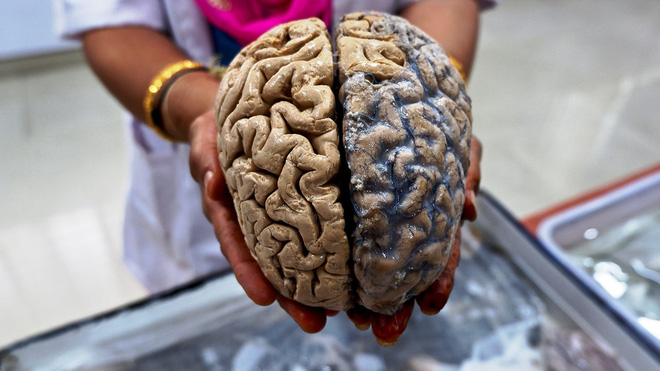 Sự thật về khẳng định con người chỉ dùng 10% sức mạnh não bộ - Ảnh 2.