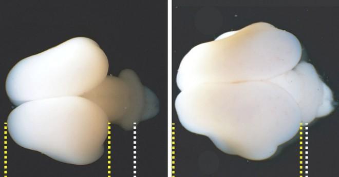 Sử dụng gen người, các nhà nghiên cứu tăng thành công kích cỡ và nếp nhăn của não khỉ - Ảnh 1.