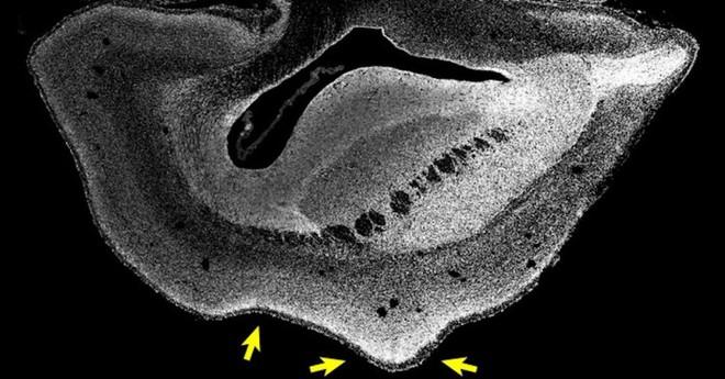 Sử dụng gen người, các nhà nghiên cứu tăng thành công kích cỡ và nếp nhăn của não khỉ - Ảnh 2.