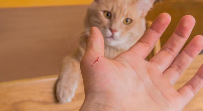 Vi khuẩn mèo cào biến cậu bé 15 tuổi thành một con người khác, phải tốn hơn 9 tỷ đồng để chữa trị - Ảnh 3.