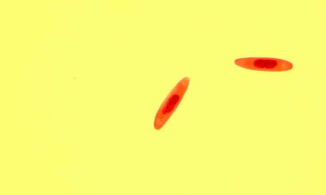 Các nhà khoa học phát hiện hai loài nấm ăn thịt mới có thể biến ruồi thành zombie - Ảnh 2.