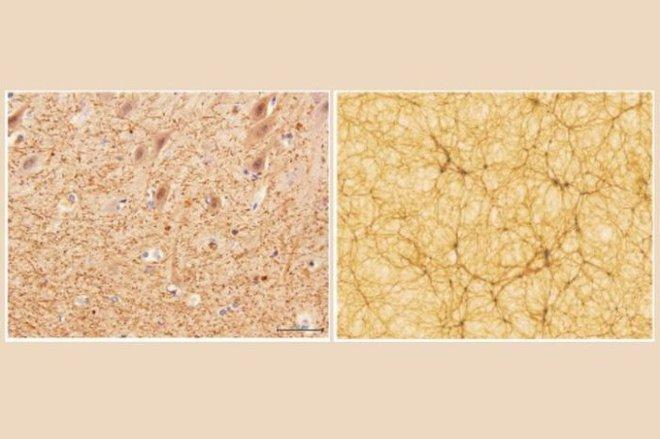 Các nhà khoa học kinh ngạc khi phát hiện sự tương đồng kỳ lạ giữa não người và vũ trụ - Ảnh 3.