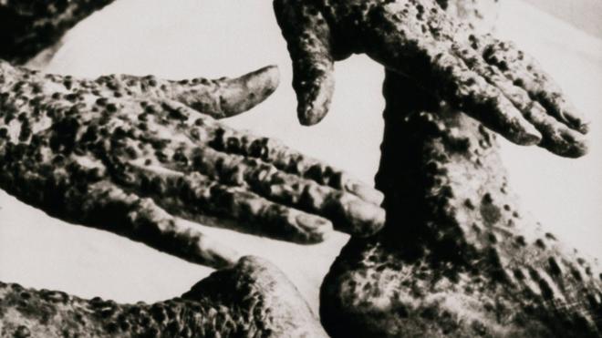 Chuyện về người nô lệ da đen đầu tiên dạy cả nước Mỹ tiêm chủng vắc-xin - Ảnh 3.
