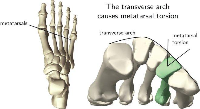 Hóa ra 100 năm khoa học đã nhầm: Chỗ lõm trên bàn chân không giúp con người đứng thẳng, mà là vòm xương ngang - Ảnh 2.