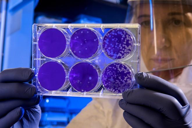 Mạng thần kinh nhân tạo tìm ra kháng sinh tiêu diệt được loại vi khuẩn mọi thuốc khác phải bó tay, đặt ra thêm câu hỏi khó cho khoa học - Ảnh 1.