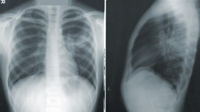 Công bố báo cáo khoa học về COVID-Net, mạng thần kinh nhân tạo có thể phát hiện dấu hiệu Covid-19 trong ảnh X-quang chụp phổi - Ảnh 1.