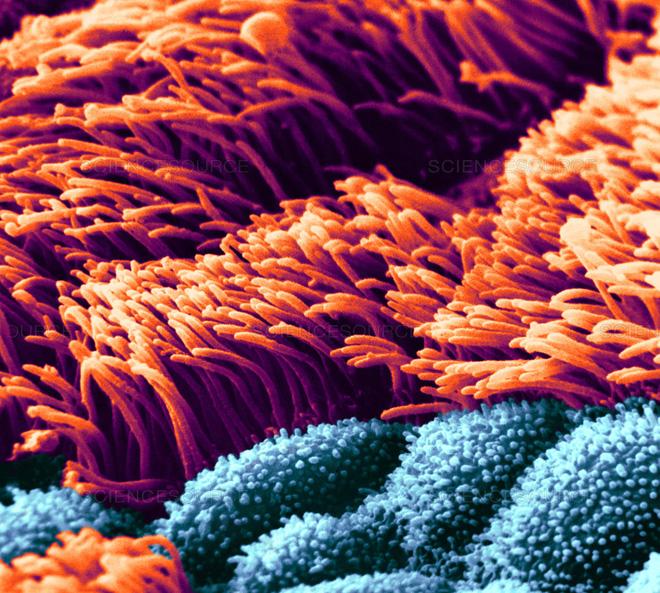 Trong dịch COVID-19 mà còn hút thuốc lá, coi chừng rơi vào nhóm nguy kịch khi nhiễm bệnh - Ảnh 3.