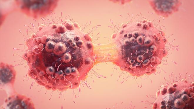 Kỹ thuật siêu âm mới có thể tiêu diệt tế bào ung thư dựa trên hiệu ứng sóng dừng - Ảnh 1.