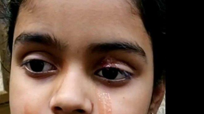Giải mã bí ẩn của haemolacria: Chứng bệnh khiến những cô gái Ấn Độ khóc ra máu - Ảnh 8.