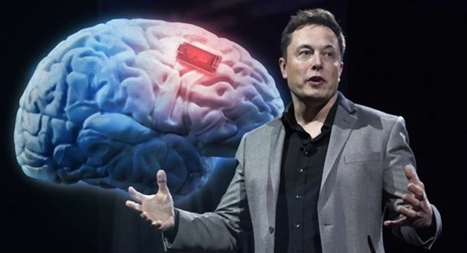 Neuralink và tham vọng cộng sinh với trí tuệ nhân tạo của Elon Musk - Ảnh 3.