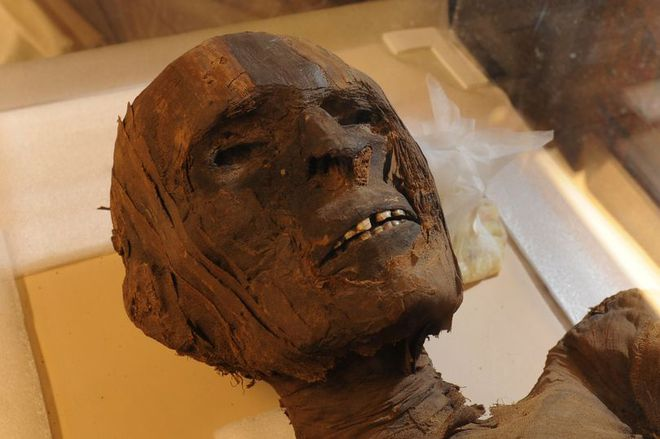 Chuyện bí ẩn đằng sau xác ướp 4.000 năm tuổi có các triệu chứng của bệnh tim - Ảnh 1.