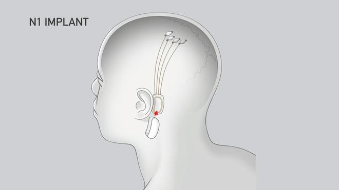 Sợ bị AI vượt mặt, Elon Musk muốn dùng Neuralink để nâng cấp khả năng con người - Ảnh 5.