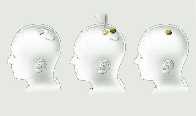 Robot cao 2,5m được Elon Musk dùng để cấy chip Neuralink AI vào não bạn có gì đặc biệt? - Ảnh 2.