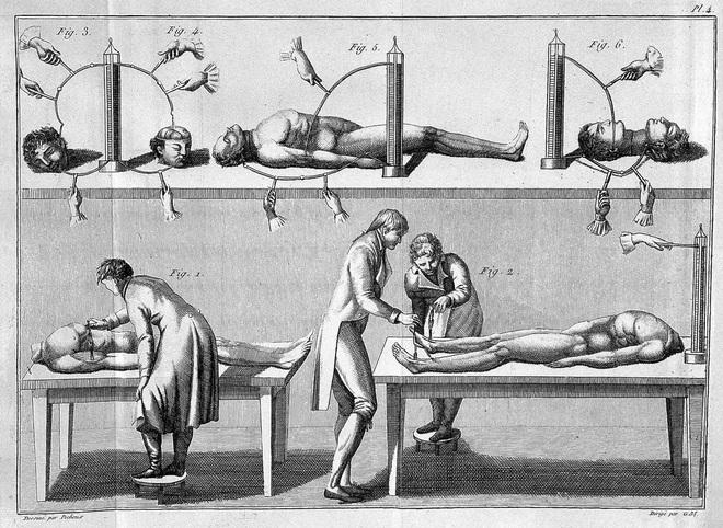 Vào những năm 1800 nhân loại đã cố gắng tạo ra Frankenstein ngoài đời thực bằng cách kích điện xác chết - Ảnh 3.