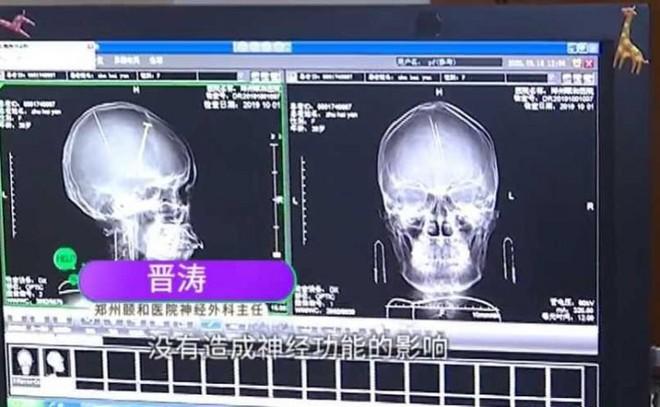 Sau tai nạn ô tô người phụ nữ Trung Quốc bất ngờ phát hiện có hai cây kim được găm vào trong não mà không hề có ký ức gì - Ảnh 2.
