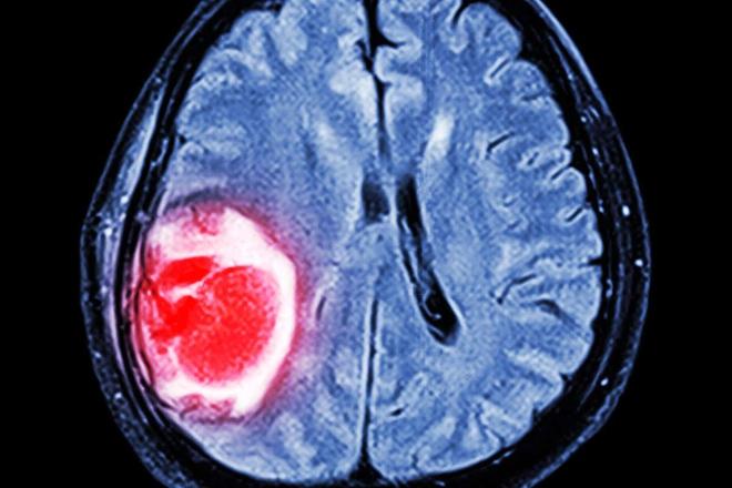 Nghiên cứu: Một chủng vi khuẩn trên mèo có liên quan đến nguy cơ ung thư não trên người - Ảnh 3.