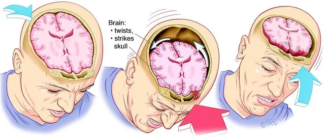 Khối lòng đỏ trứng ma thuật này đang giúp các nhà khoa học hiểu về chấn thương sọ não - Ảnh 4.