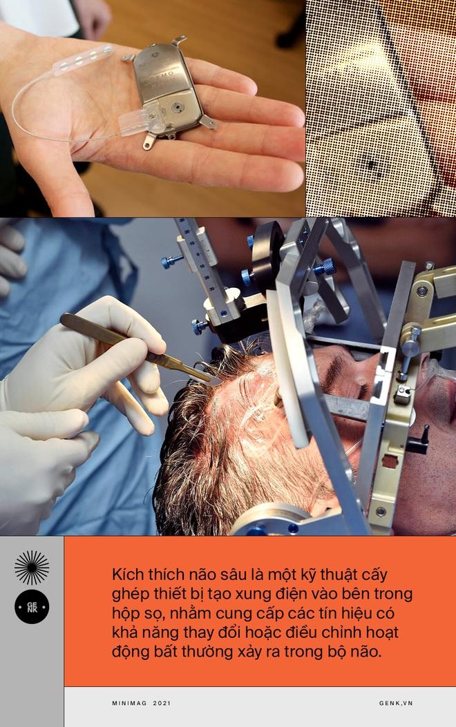 Hạnh phúc chạy bằng pin: Bệnh nhân đầu tiên trên thế giới chữa khỏi trầm cảm nhờ phẫu thuật kích thích não - Ảnh 3.