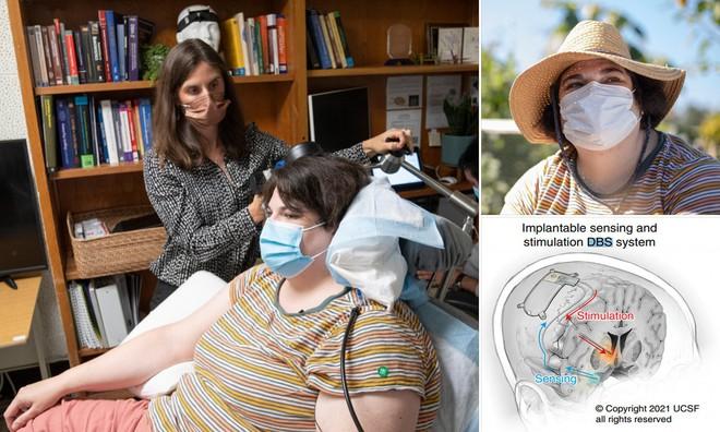 Các nhà khoa học sử dụng cấy ghép não để chữa bệnh trầm cảm nặng ở phụ nữ - Ảnh 3.